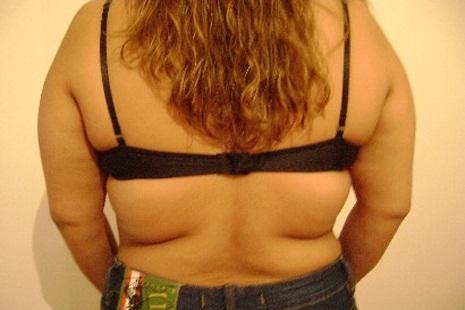 Gordura localizada nas costas