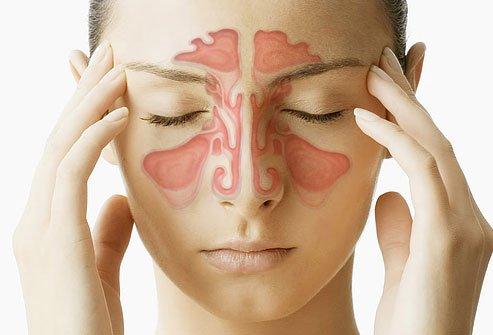 Seios nasais